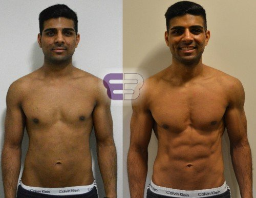 laser treatment for weight loss in mumbai 2015