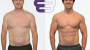 Top Tips to Achieve a Successful Body Transformation